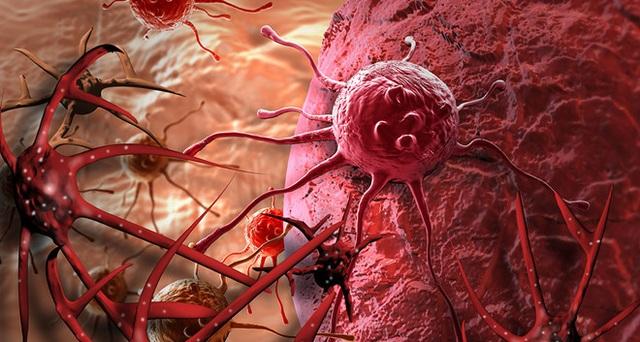Duy trì 10 thói quen mỗi ngày, ung thư khó tới gần bạn - 1
