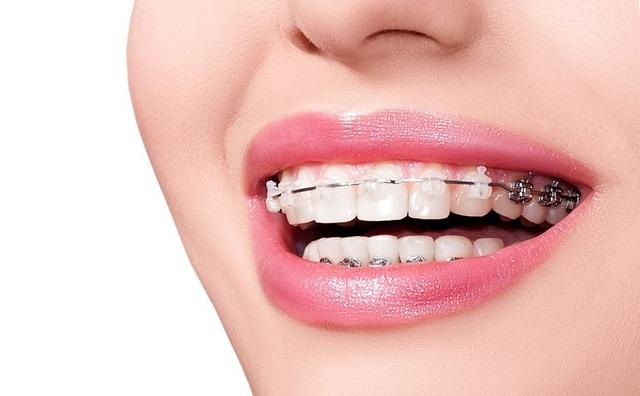 Cách niềng răng hoạt động phức tạp và thú vị hơn chúng ta nghĩ rất nhiều! - 1