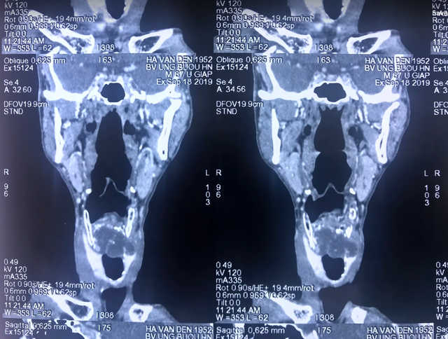 Cục cứng nổi lên ở vùng cổ, người đàn ông mắc thể u hiếm gặp trên thế giới - 2