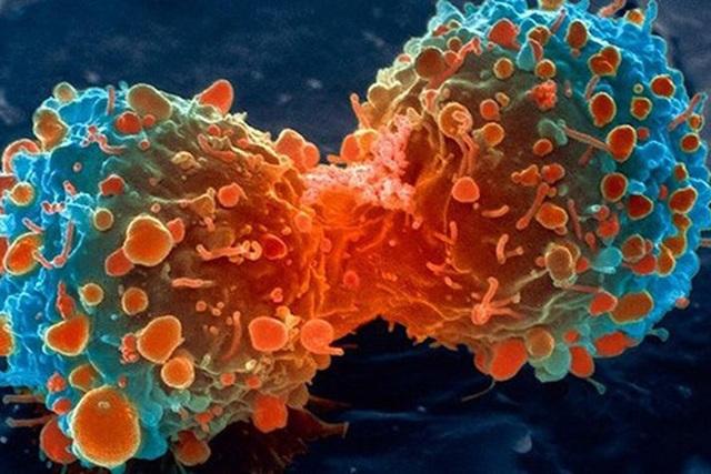 Vì sao những người có lối sống lành mạnh vẫn bị ung thư? - 1