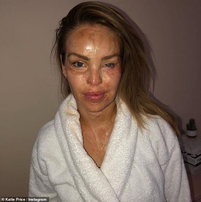 MC truyền hình Katie Piper hé lộ ảnh bị tạt axít - 4