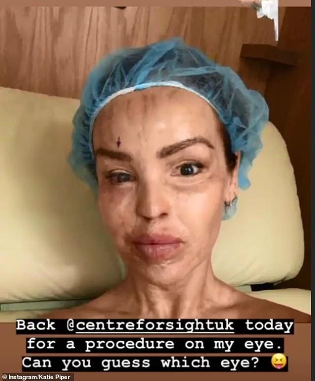 MC truyền hình Katie Piper hé lộ ảnh bị tạt axít - 5