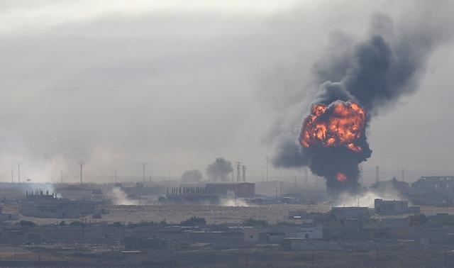 Tấn bi kịch của những người Syria trúng bom rơi, đạn lạc giữa chiến sự leo thang - 3
