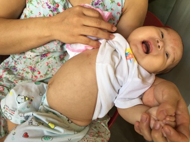 Ánh mắt cầu cứu của bé gái 5 tháng tuổi bị ung thư máu - 2