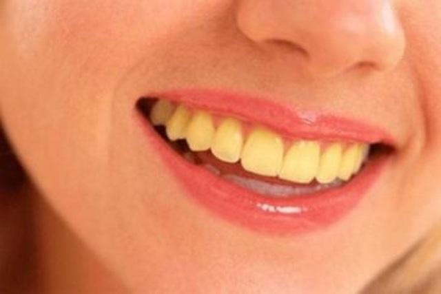 Vết ố cà phê trên răng: nguy cơ và cách giải quyết - 1