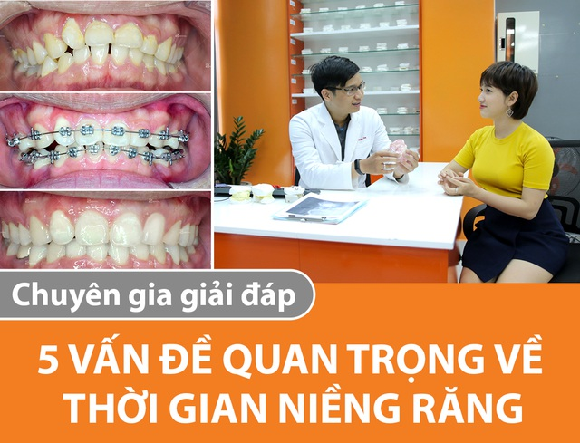 Thời gian niềng răng: 5 vấn đề quan trọng được chuyên gia giải đáp - 1