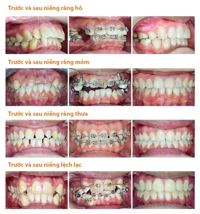 Thời gian niềng răng: 5 vấn đề quan trọng được chuyên gia giải đáp - 2