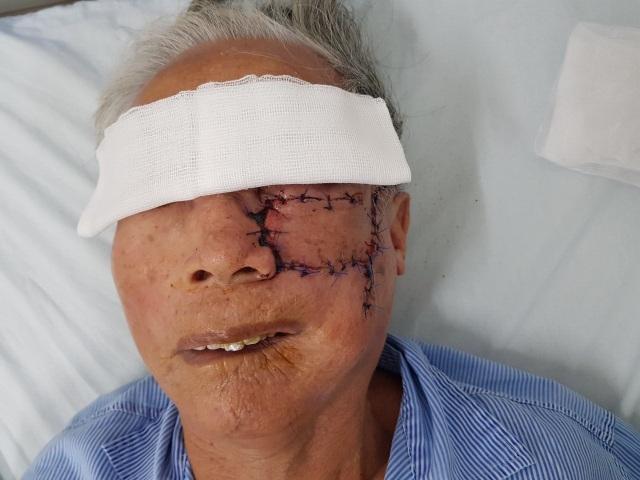 Bác sĩ vá mặt chữa khối u sần sùi  che hết nửa mặt bệnh nhân - 2