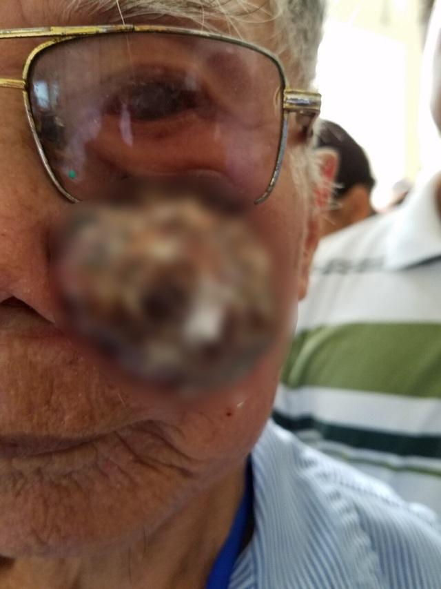 Bác sĩ vá mặt chữa khối u sần sùi  che hết nửa mặt bệnh nhân - 1