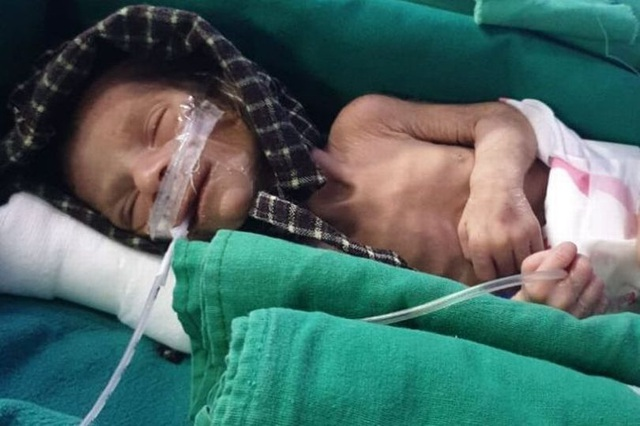 Ấn Độ: Đào mộ chôn con gái mới mất, tá hỏa phát hiện tiếng người khóc ở độ sâu một mét - 2