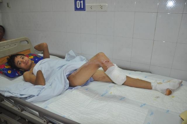Bị điện cao thế phóng cụt tay chân, ông bố trẻ tỉnh dậy hét lên hoảng loạn - 2