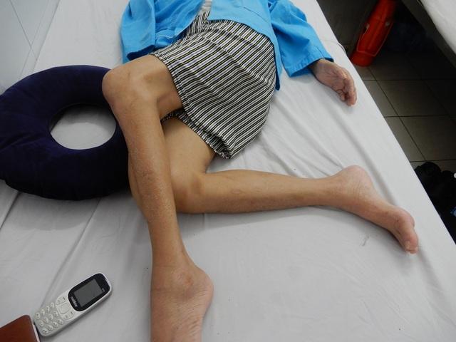 Người đàn ông bị cổng làng sập đè suýt chết, vợ đột quỵ khi chăm chồng - 5