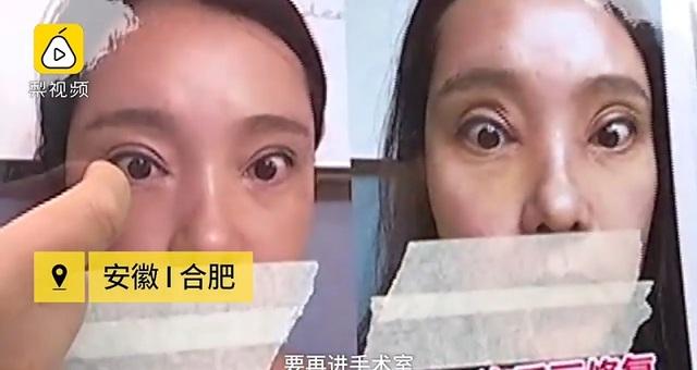 Thê thảm cô gái không thể nhắm mắt sau khi phẫu thuật cắt mí - 1