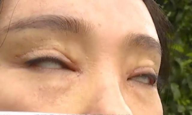 Thê thảm cô gái không thể nhắm mắt sau khi phẫu thuật cắt mí - 2