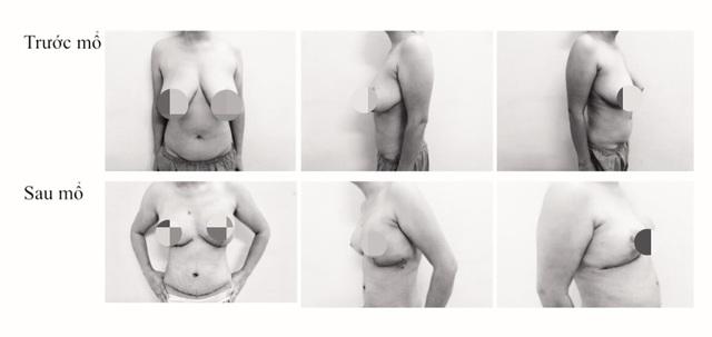 Bệnh nhân ung thư vú hết cảnh bên còn, bên mất sau điều trị khối u - 1