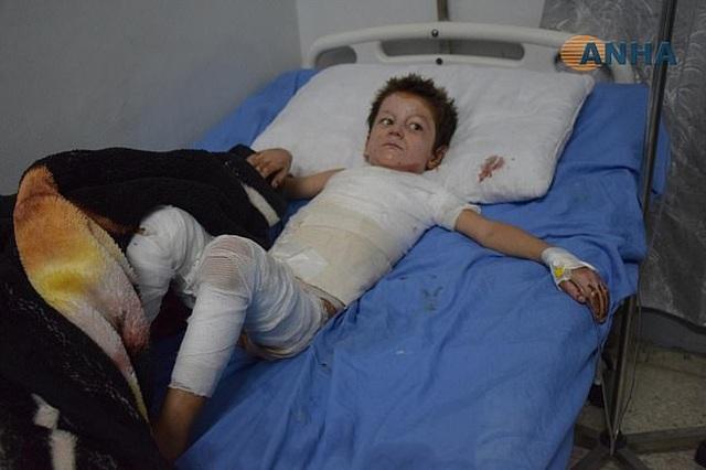 Những đứa trẻ Syria bị trúng bom trong chiến sự dữ dội của Thổ Nhĩ Kỳ - 3