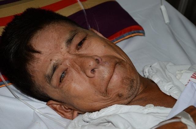 Số phận bi thảm của người đàn ông nhập viện chỉ đủ tiền mua 3 suất cơm bụi - 5