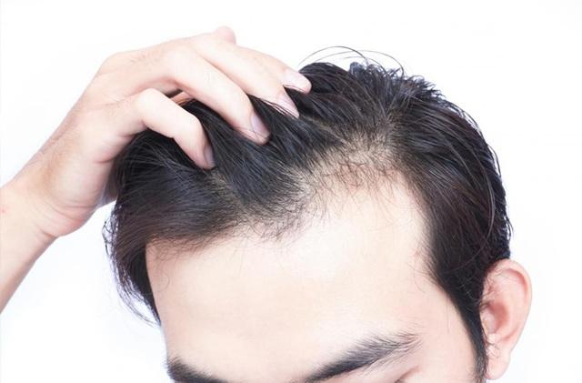 Hói đầu sớm ở nam giới và cách điều trị hói đầu hiệu quả - 1