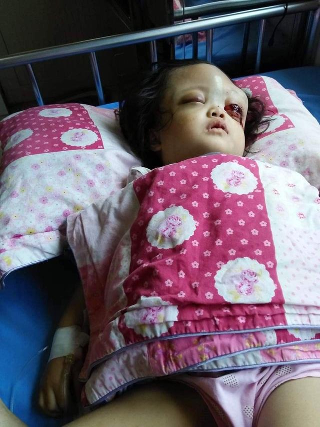 Nhìn bé gái bị ung thư hành hạ hỏng một mắt mà lòng tôi như quặn lại! - 2