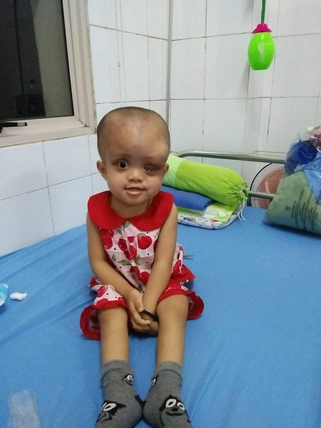 Nhìn bé gái bị ung thư hành hạ hỏng một mắt mà lòng tôi như quặn lại! - 5