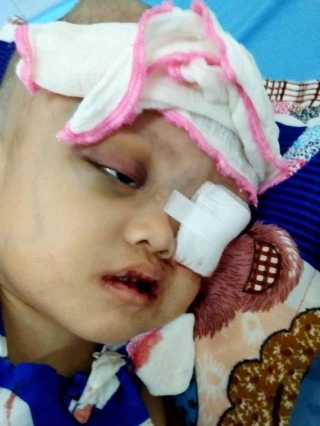 Nhìn bé gái bị ung thư hành hạ hỏng một mắt mà lòng tôi như quặn lại! - 3