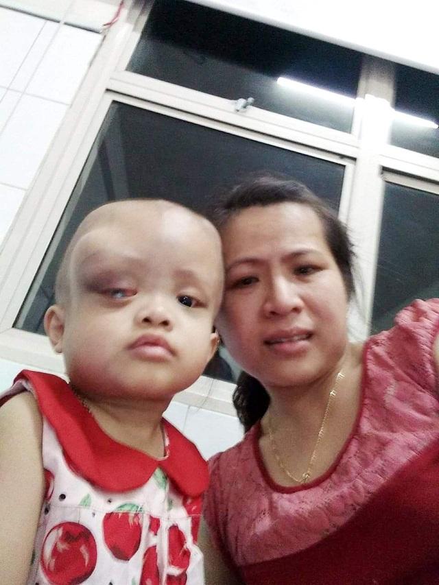 Nhìn bé gái bị ung thư hành hạ hỏng một mắt mà lòng tôi như quặn lại! - 4