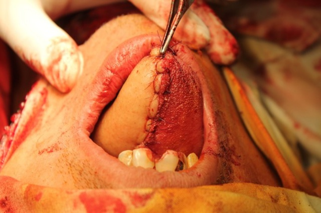 Lưỡi bị ung thư sau khi cắt được bác sĩ tái tạo như thế nào? - 4