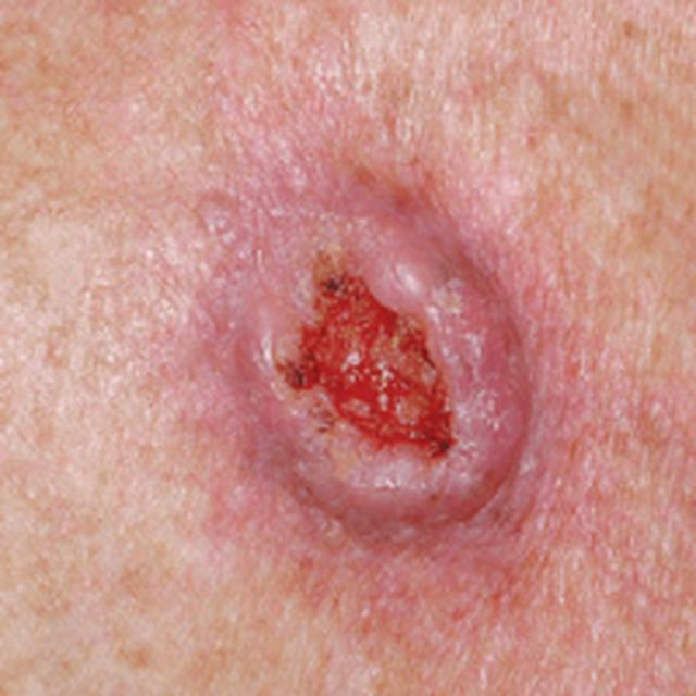 """Tự bảo vệ mình khỏi ung thư da với """"cẩm nang vàng"""" từ bác sĩ - 4"""