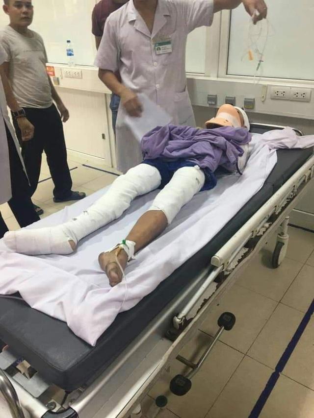 Kinh hoàng bé trai bị phóng điện phải tháo bỏ cả 2 tay tại Nghệ An! - 3