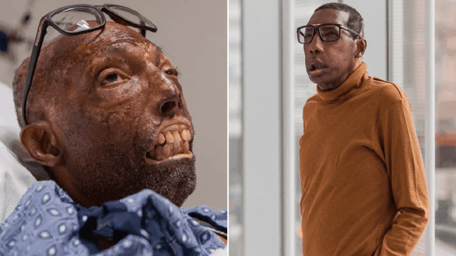 Ca ghép mặt hoàn toàn đầu tiên được thực hiện trên người da màu - 1
