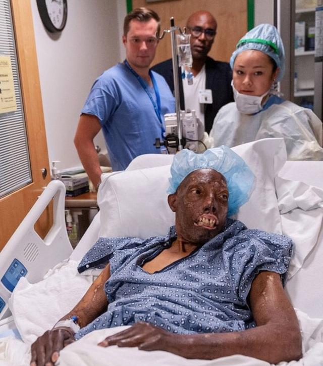 Ca ghép mặt hoàn toàn đầu tiên được thực hiện trên người da màu - 2