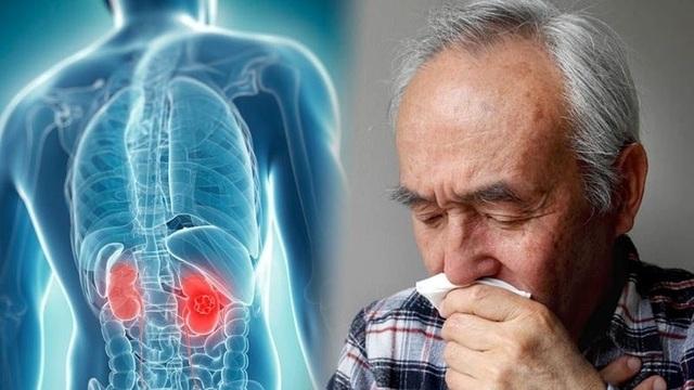 Bác sĩ khuyến cáo 5 điều cần làm để tránh xa căn bệnh ung thư thận - 1