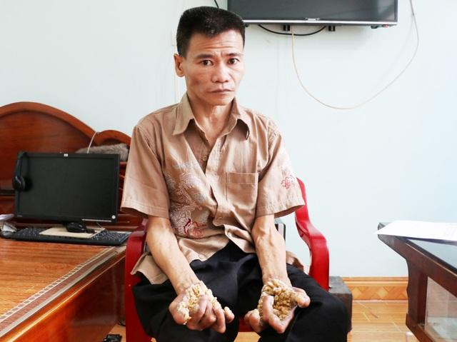 """Thăm người đàn ông mang bệnh """"người cây"""" ở Ninh Bình - 1"""