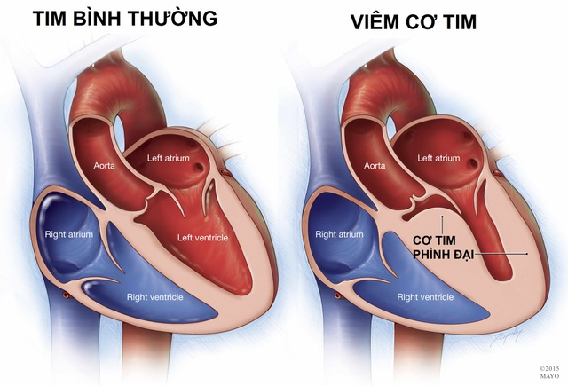 Viêm cơ tim ở trẻ em: Diễn biến thần tốc, có thể tử vong sau vài ngày - 1