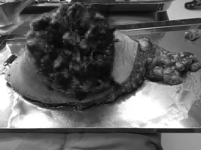 Bầu vú vỡ toạc như miệng núi lửa vì đắp thuốc nam trị ung thư - 3