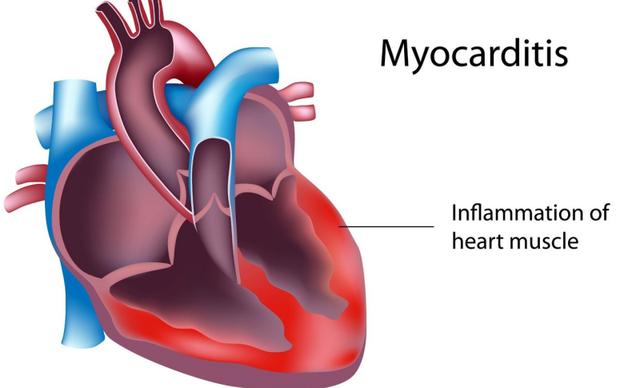 Hiểu đúng về căn bệnh viêm cơ tim khiến hai người Hà Nội tử vong - 1