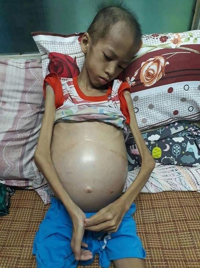 Xót xa bé trai gầy trơ xương, bụng phình như cái trống vì bệnh tật - 1