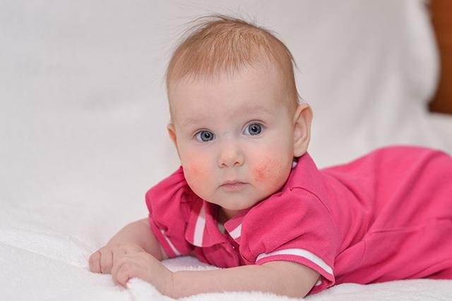 Cha mẹ nên biết: Các yếu tố gây dị ứng thực phẩm ở trẻ sơ sinh - 1