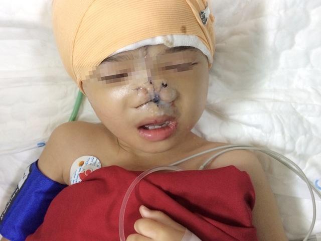 Vi diệu ca phẫu thuật đưa 2 mắt bé gái lại… gần nhau - 3
