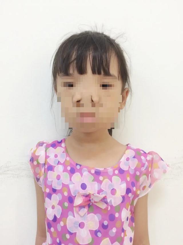 Vi diệu ca phẫu thuật đưa 2 mắt bé gái lại… gần nhau - 1