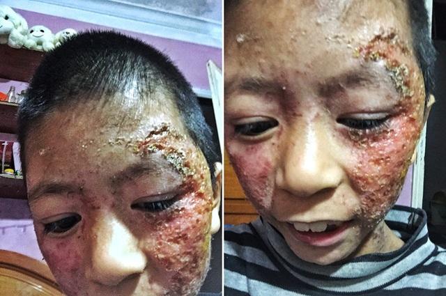 Chuyện cảm động về cô gái Hà Nội xinh đẹp từng bị kỳ thị vì nhận nuôi bé gái lở loét - 1