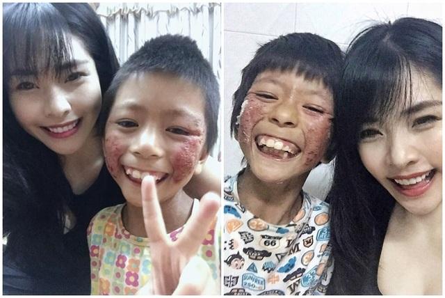 Chuyện cảm động về cô gái Hà Nội xinh đẹp từng bị kỳ thị vì nhận nuôi bé gái lở loét - 4
