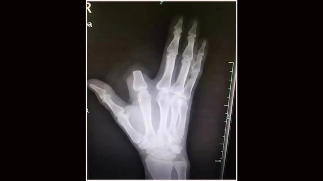 Sốc người đàn ông tự chặt đứt ngón tay khi bị rắn cắn - 1