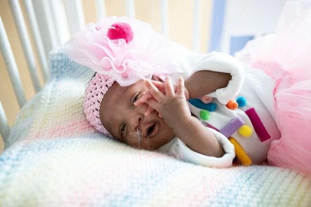 Dễ thương bé sơ sinh thiếu tháng diện đồ hóa trang đón Halloween trong bệnh viện - 3