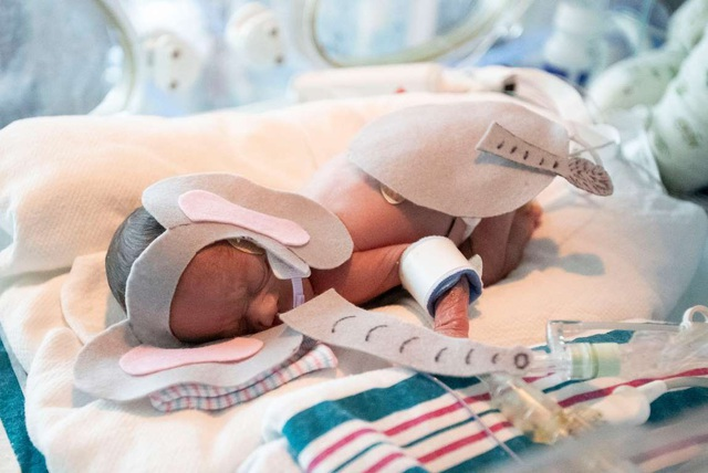 Dễ thương bé sơ sinh thiếu tháng diện đồ hóa trang đón Halloween trong bệnh viện - 8