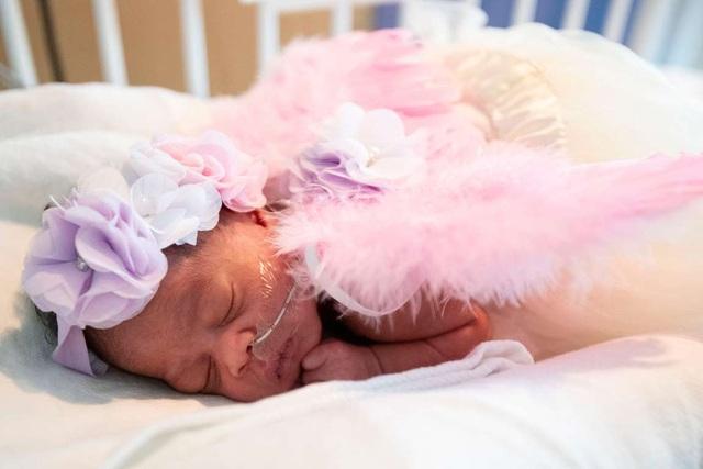 Dễ thương bé sơ sinh thiếu tháng diện đồ hóa trang đón Halloween trong bệnh viện - 16
