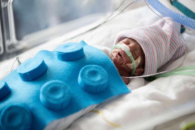 Dễ thương bé sơ sinh thiếu tháng diện đồ hóa trang đón Halloween trong bệnh viện - 5