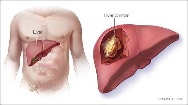 7 điều cần làm nếu muốn tránh ung thư gan - 1
