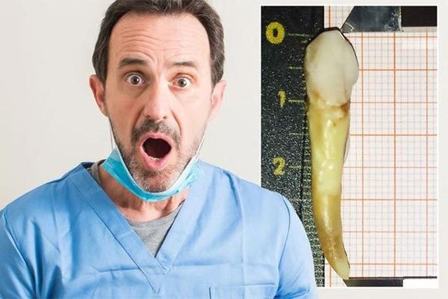Lập kỷ lục thế giới nhờ chiếc răng dị thường - 3