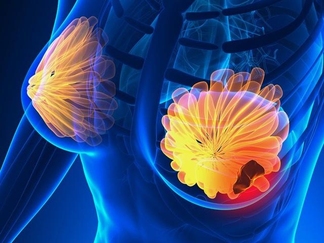 Phương pháp xét nghiệm máu mới giúp chẩn đoán ung thư vú trước 5 năm - 1